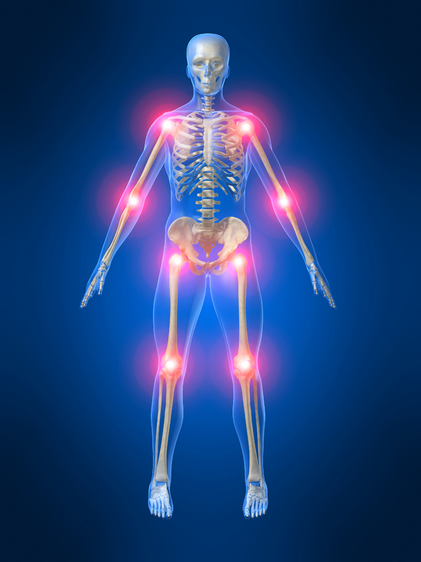 remedies for arthritis - man with glowing joints