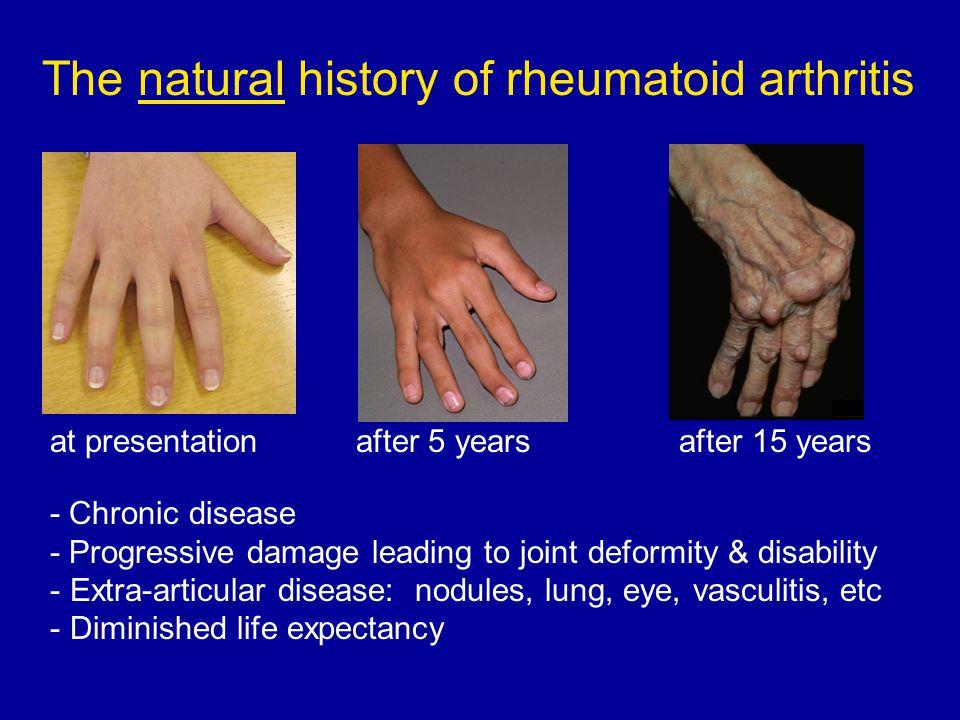 autoimmune arthritis