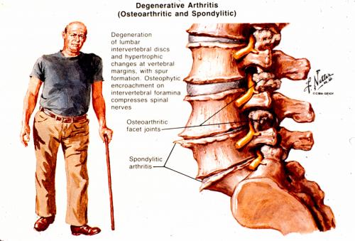 arthritis in the spine