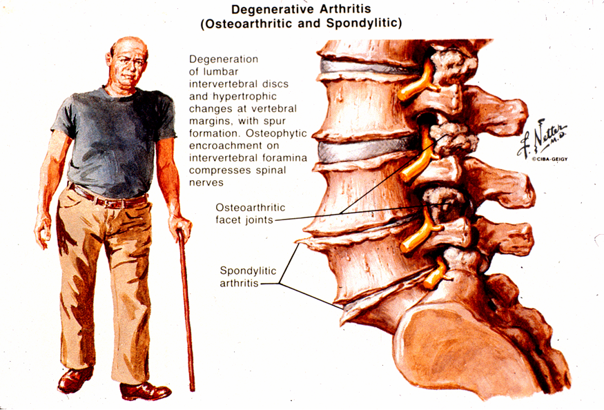 degenerative arthritis of the spine