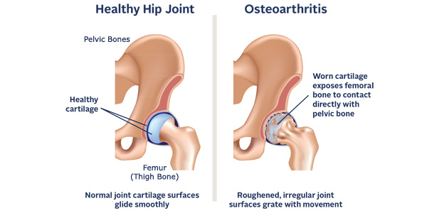 symptoms of hip arthritis