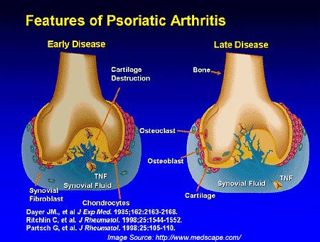 what is psoriatic arthritis