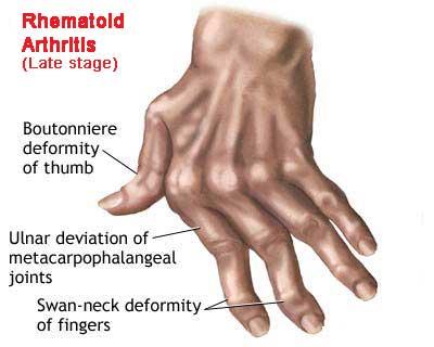 rheumatoid arthritis relief