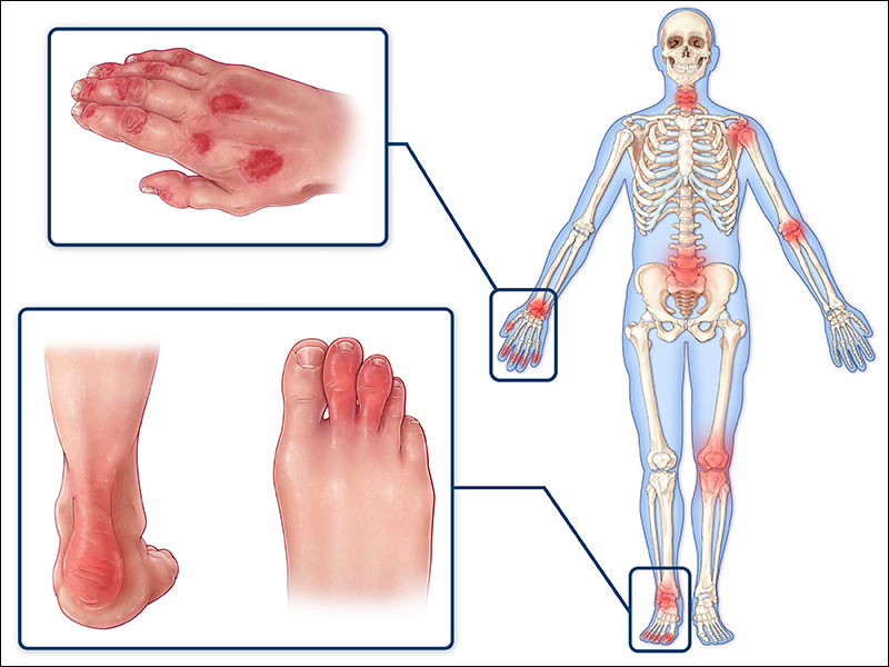 signs of psoriatic arthritis