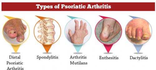 psoriatic arthritis types