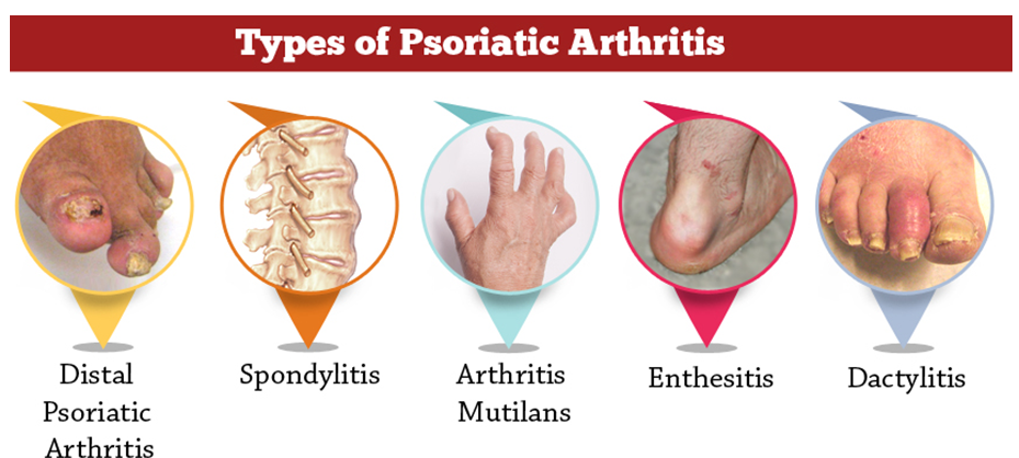 types of psoriatic arthritis