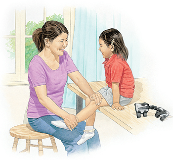 signs of juvenile arthritis