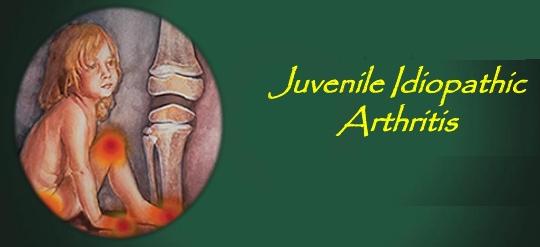 idiopathic arthritis