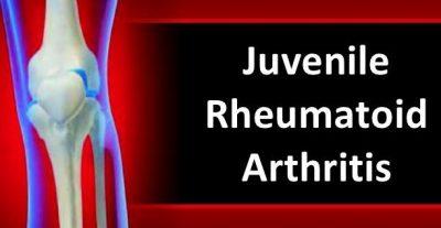 juvenile arthritis symptoms