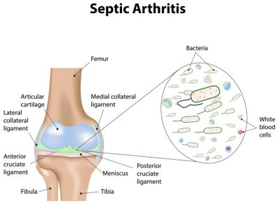 septic arthritis infection