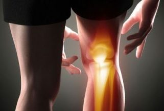 arthritis pain in the knee