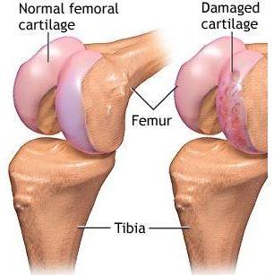 damaged cartilage