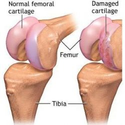 damaged cartilage
