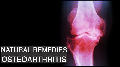 osteoarthritis natural remedies