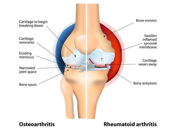 rheumatoid arthritis knee