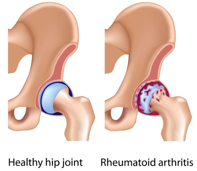 rheumatoid arthritis hip pain