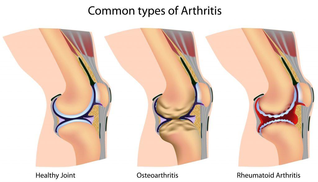 arthritis causes