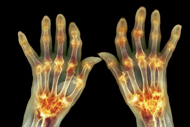 arthritis in the hands symptoms