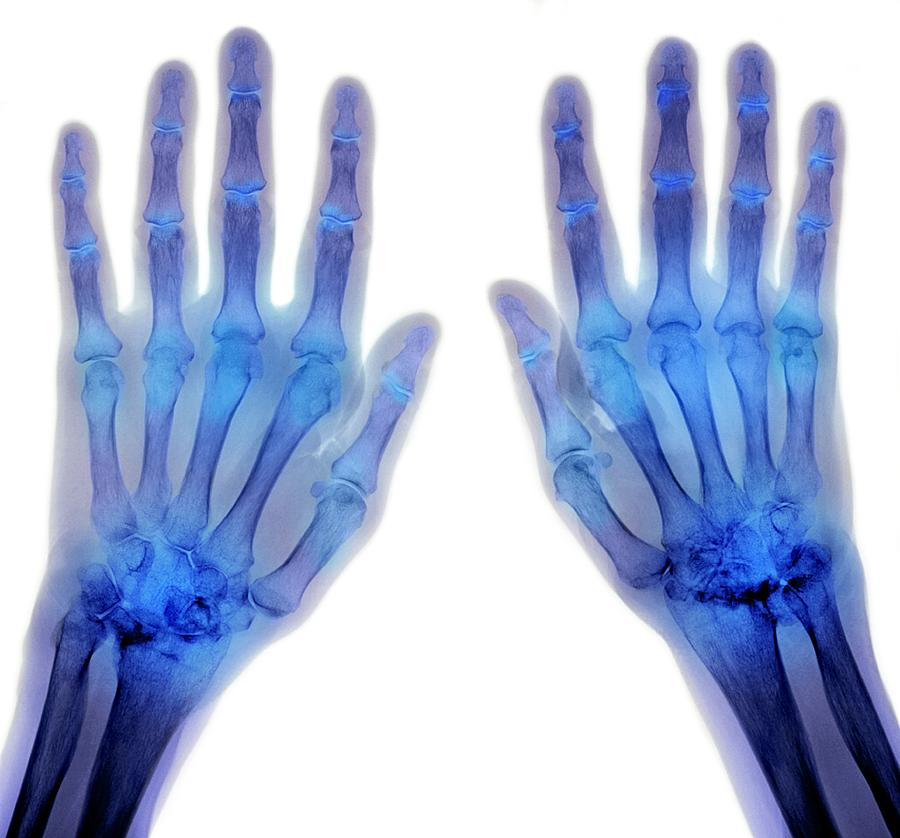 signs of arthritis in hands