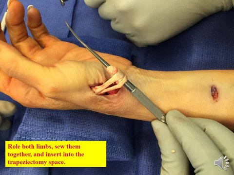 thumb surgery for arthritis