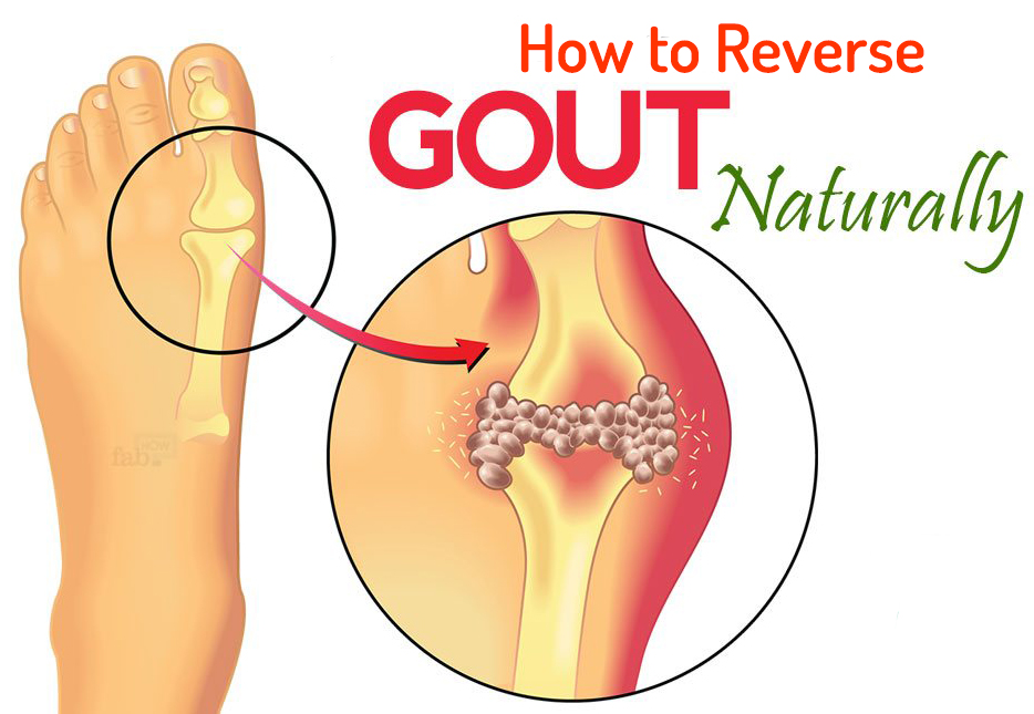 natural gout remedy