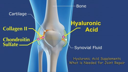 hyaluronic acid for joints