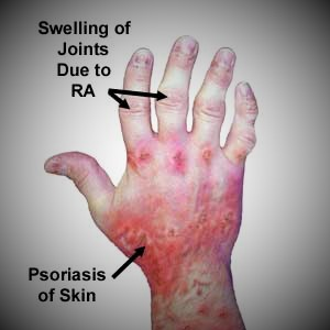 psoriatic arthritis in hands