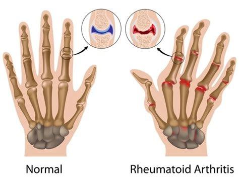 rheumatoid arthritis thumbs