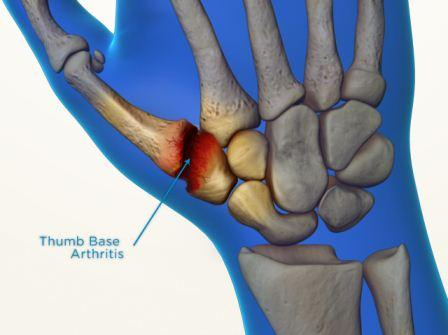 arthritis in thumb