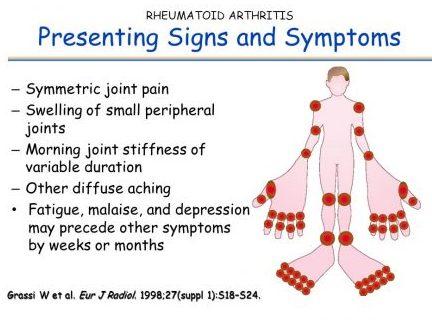 Rheumatoid Arthritis Signs