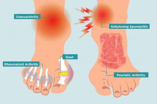 different types of arthritis in feet