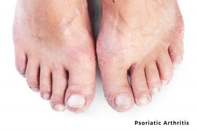 pictures of psoriatic arthritis in feet