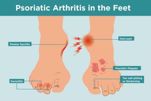 psoriatic arthritis on feet