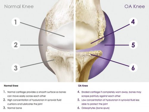 signs of arthritis knees