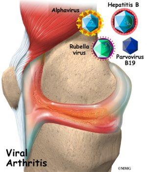 viral arthritis
