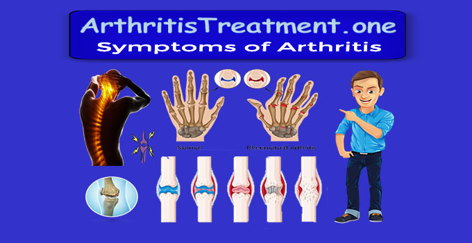 what are the symptoms for arthritis