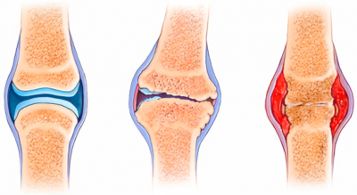 difference between rheumatoid arthritis and osteoarthritis