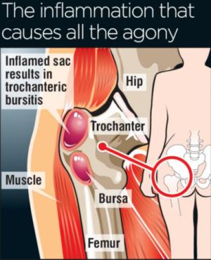 bursitis hip treatment