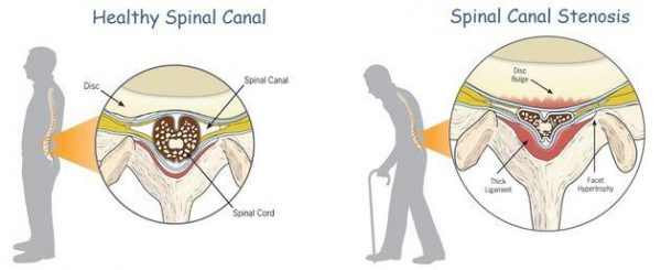 Symptoms of Spinal Stenosis Lumbar